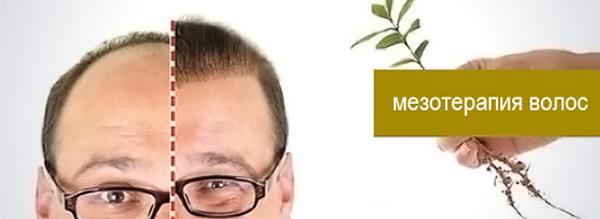 масло для роста волос купить в минске