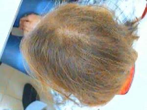 выпадение волос при анемии