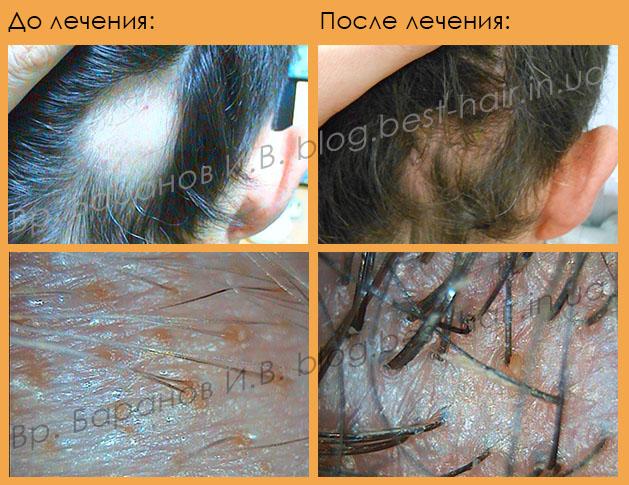 восстановление роста волос