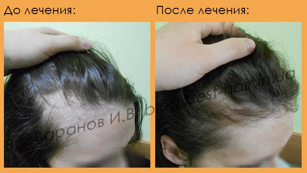 Выпадают волосы во время гв