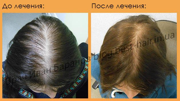 Средства для удаления волос на лице у мужчин