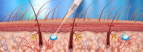 patogenic